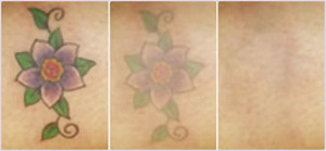 laser-tattoo-removal-pictures-9-1