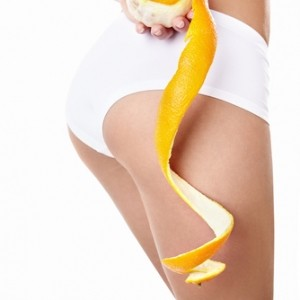 What-Is-Cellulite-And-Cellulite-Treatment